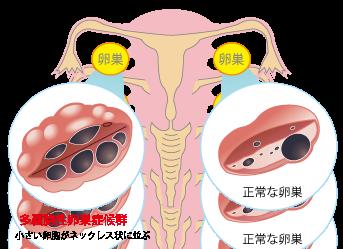 卵巣 症候群 多 嚢胞 漢方 性